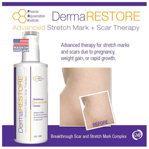 DermaRestore Advanced Stretch Mark + Scar Therapy